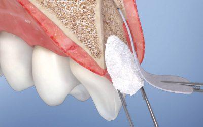 Où se faire poser un implant dentaire en toute sécurité à Marseille Centre ?