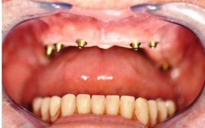 Les implants dentaires en mise en charge immédiate par le Dr Yacine BENMAKHLOUF, dentiste implantologue à Marseille
