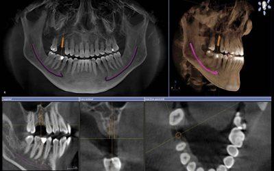 Pourquoi et comment évalue-t-on un volume osseux ? Le Dr BENMAKHLOUF dentiste implantologue à Marseille vous répond