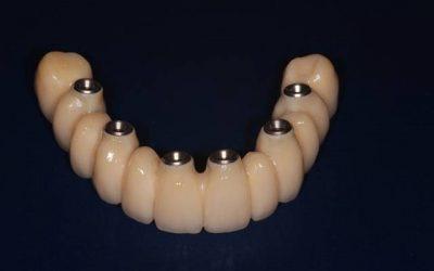 La pose de l'implant dentaire est-elle pérenne dans le temps?