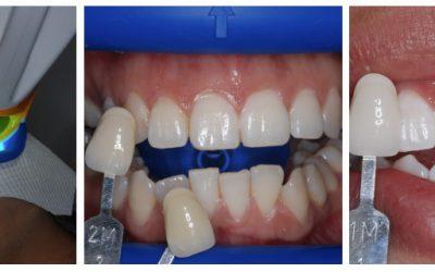 Éclaircissement au fauteuil (blanchiment dentaire)