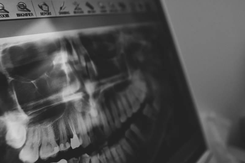 Comment se passe l'examen de scanner en 3 Dimensions pour la pose des implants dentaires au Cabinet d'Implantologie et d'Esthétique Dentaire de Marseille ?
